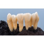 Dima Mill Zirconia  HTE 99x14, Vita цветове А1-D4– перфектна база за керамично нанасяне