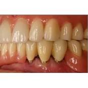 Зъботехника Signum -модулна система от  композити