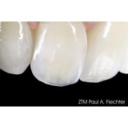 Зъботехника Heraceram Zirconia - керамика за инкрустиране на циркониеви конструкции