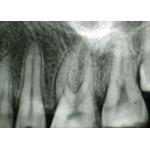 Agfa Dentus E-speed 3×4 см  150бр рентгенови филми