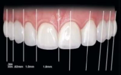 План за лечение и дизайн на усмивката с високо напълнени фотокомпозити