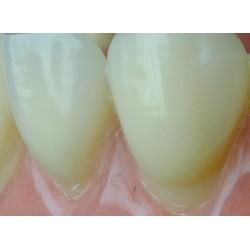 Artic -Kulzer dental - протезни зъби